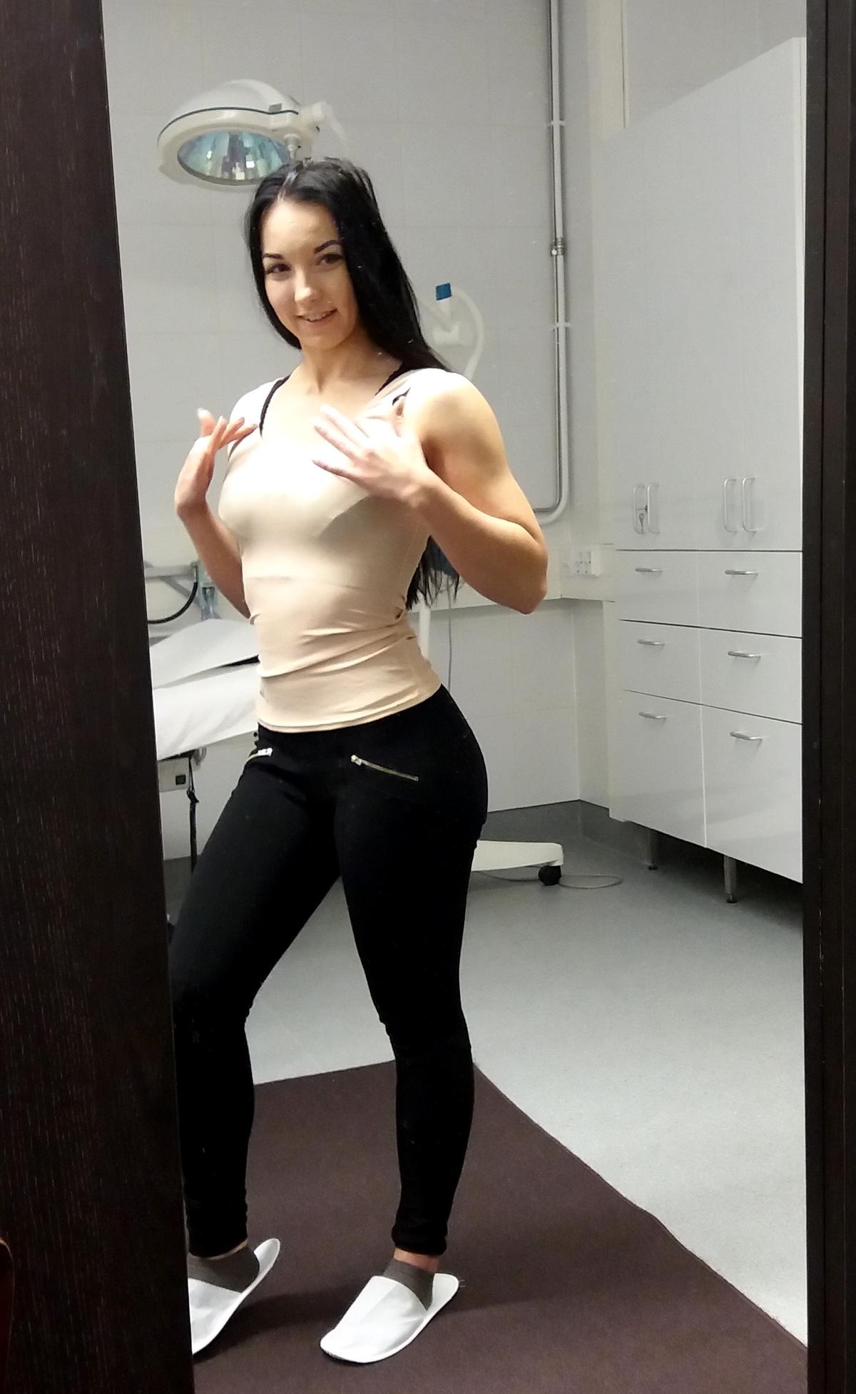 Tarkistutin rintani – opin uutta implanteista